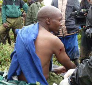 Jean Bosco Ntiragenya, bitten in the shoulder